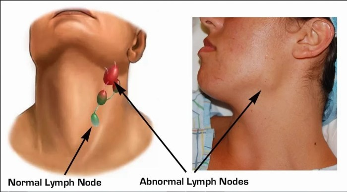 What are lymph glands?
